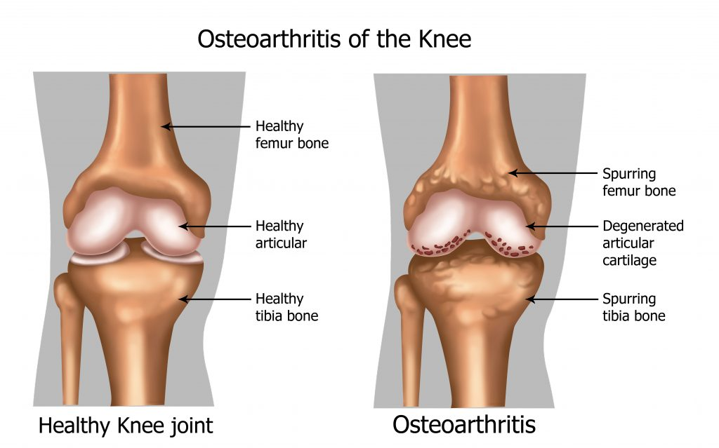 knee pain, osteoarthritis, arthritis, knee arthritis, degenerative joint disease,